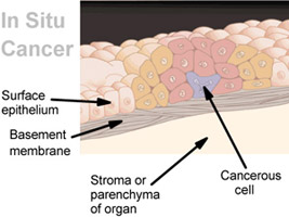 Depiction of an in situ tumor