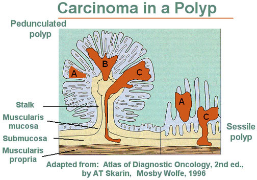 Illustration of a carcinoma in a polyp