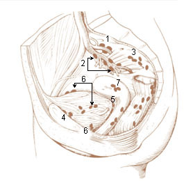 Numbered illustration of the internal iliac and perivesicular lymph nodes