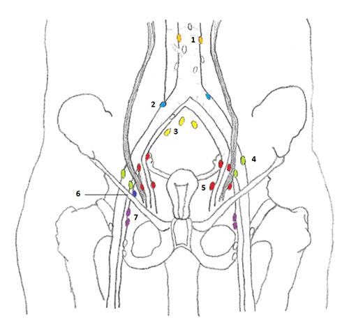 SEER Training: Lymph Nodes of Female Pelvis
