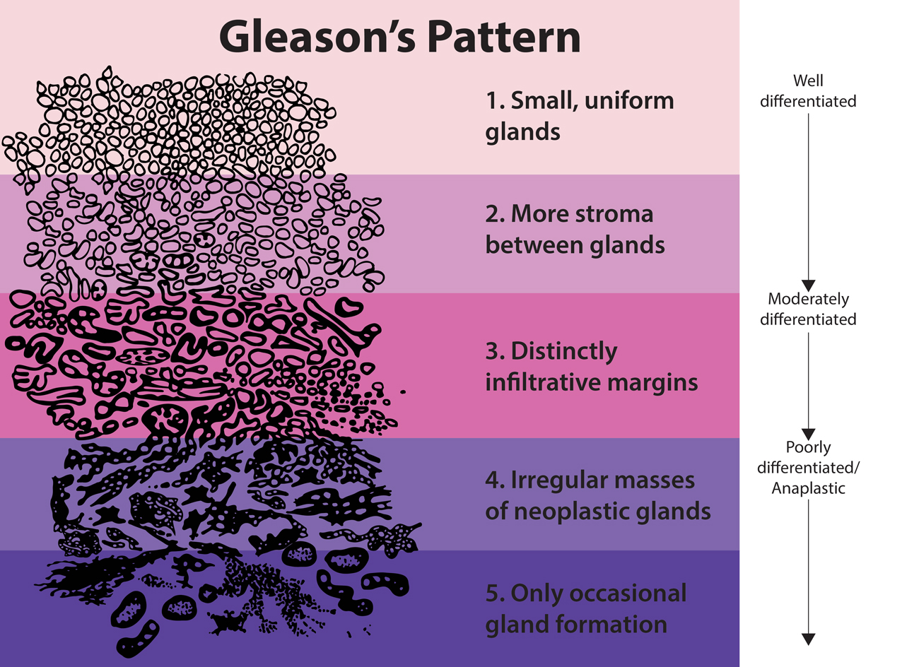 Diagram illustrating Gleason's Pattern