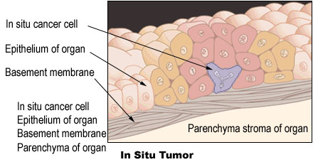 Illustration of an in situ tumor.