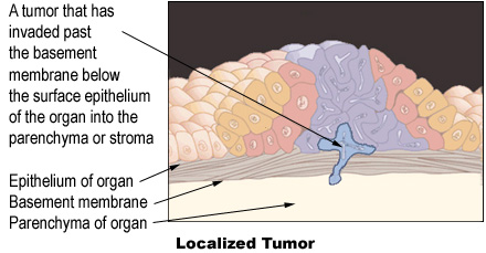 Illustration of a localized tumor