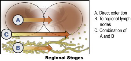 Regional Stages: A. Direct extention, B. To regional lymph nodes, C. Combination of A and B